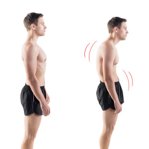 Corrective Exercise Image