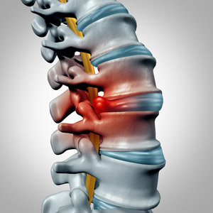 chiropractic-care-for-back-injury