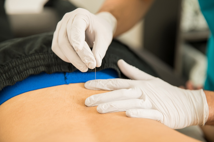 Chiropractor-Bozeman-Offers-Dry-Needling